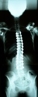 representing patient cases - x ray image of the back, spinal area of one of Moreno's patients - front view