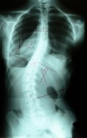 x ray image of the back, spinal area of one of Moreno's patients - front view