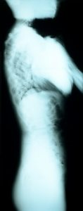 x ray image of the back, spinal area of one of Moreno's patients - side view