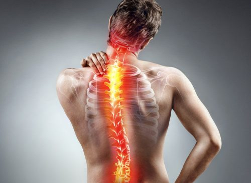 signs of scoliosis - inflamed animated back pain on male